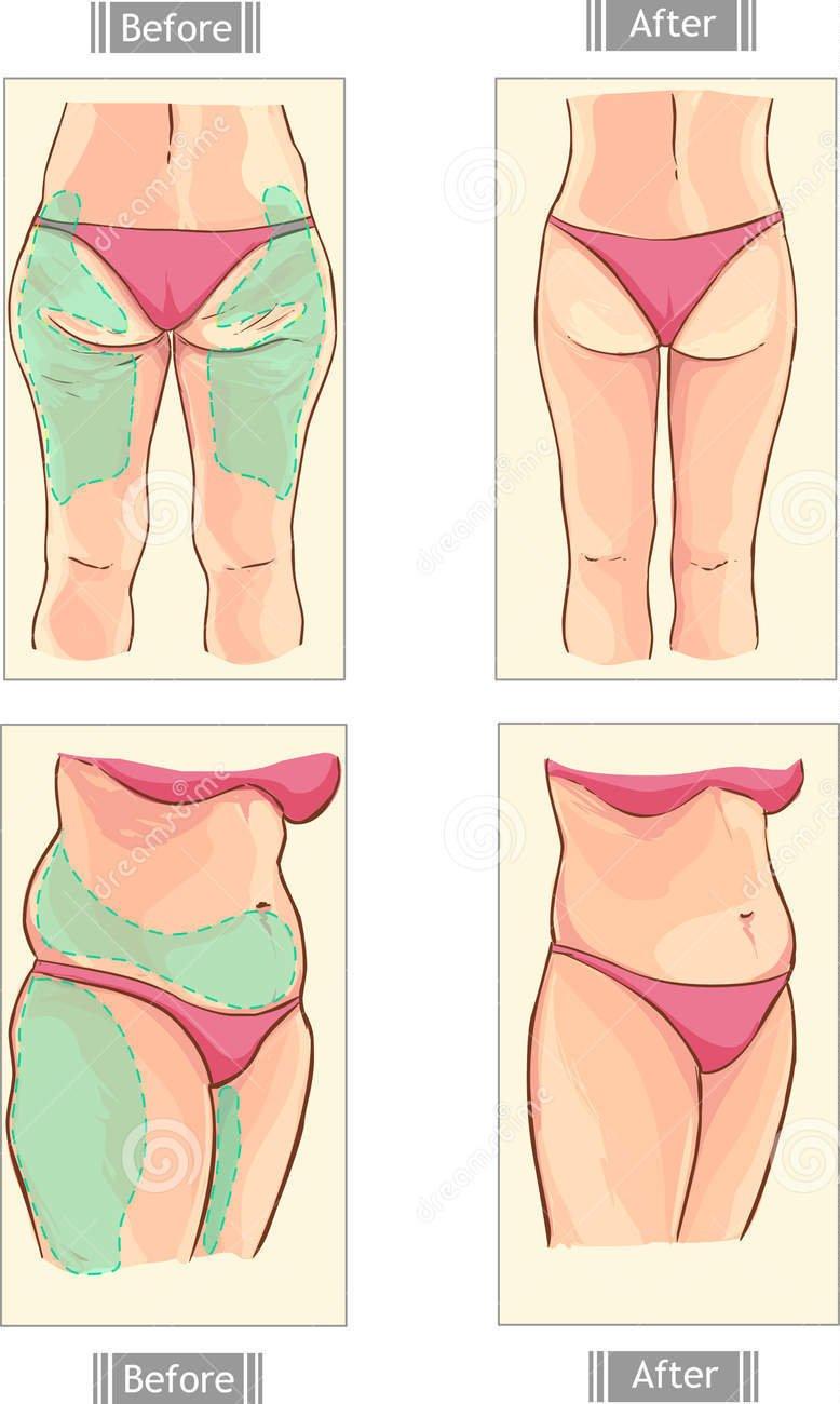 Chirurgia Estetica - Intervento di liposcultura o liposuzione nelle cosce o nell'addome