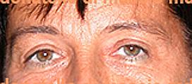 Chirurgia Plastica Estetica Viso | Blefaroplastica superiore - Dopo l'intervento