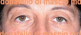 Chirurgia Plastica Estetica Viso | Blefaroplastica superiore - Prima dell'intervento