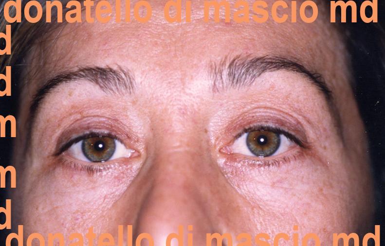 Chirurgia Plastica Estetica Viso | Blefaroplastica superiore e inferiore - dopo l'intervento