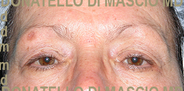 Chirurgia Plastica Estetica Viso | Blefaroplastica superiore ed inferiore + LaserCO2 resurfacing - Prima dell'intervento
