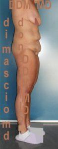 Addominoplastica Laterale Dx prima