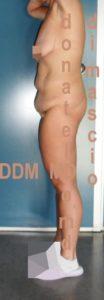 Addominoplastica Laterale Sx prima