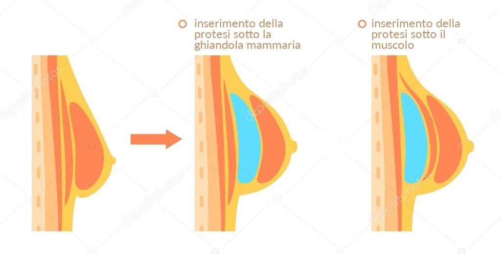 Dott. Di Mascio - Chirurgo Plastico | Chirurgia Estetica Aumento del Seno (Mastoplastica Additiva)