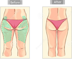 Dott. Di Mascio - Chirurgo Plastico | Chirurgia Estetica Liposcultura gambe e cosce