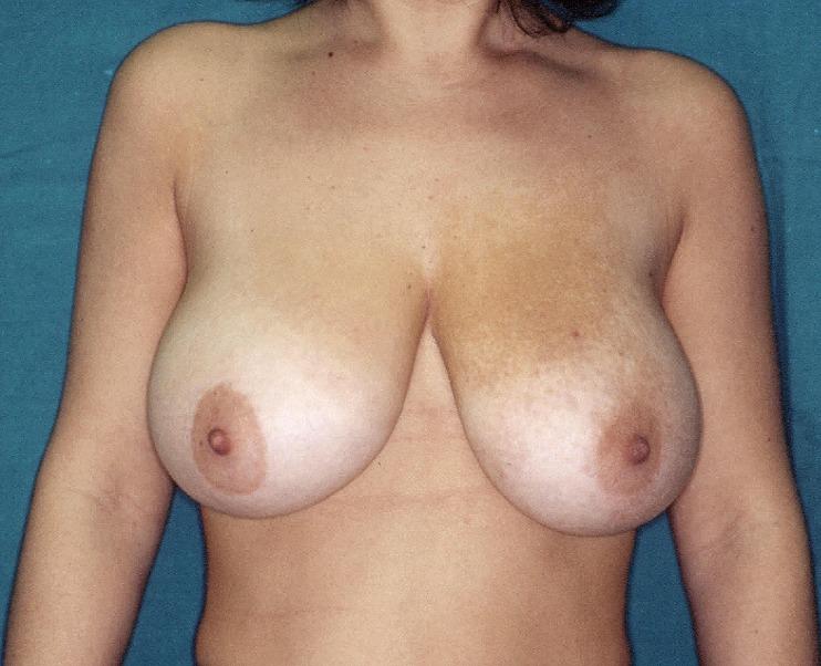 Dott. Di Mascio - Chirurgo Plastico | Chirurgia Estetica Sollevamento del Seno