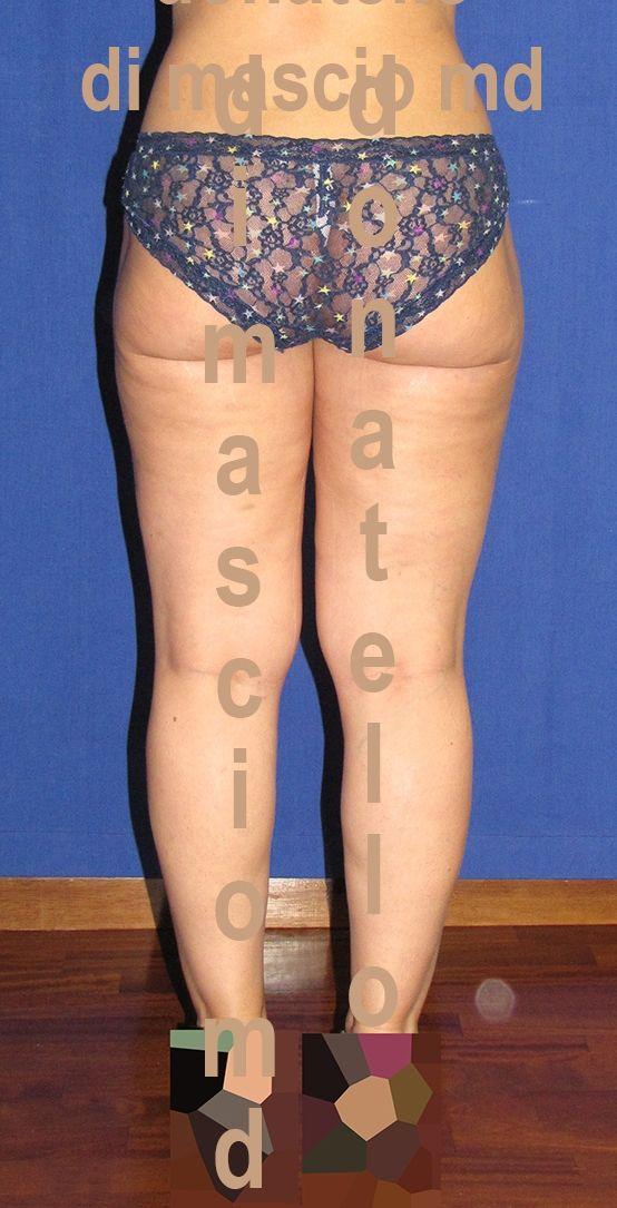 Chirurgia Estetica | Liposcultura trocanteri dopo l'intervento