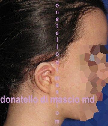 Chirurgia dell'Orecchio | Malformazione Auricolare dopo l'intervento