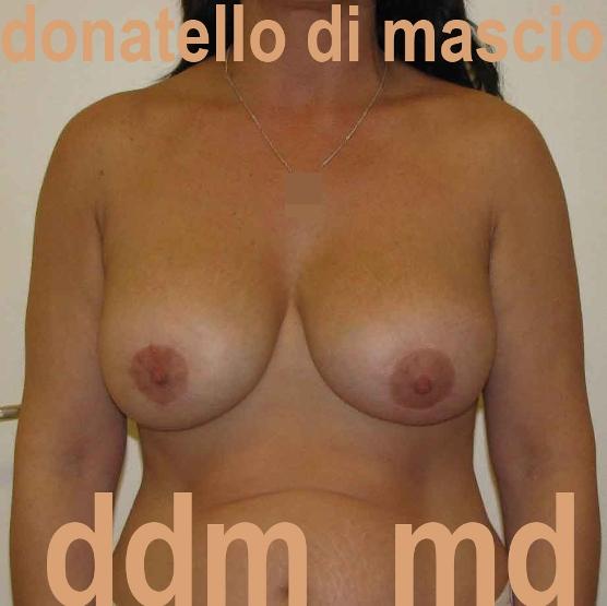 Chirurgia Estetica | Sollevamento del Seno: Mastopessi + Protesi sotto muscolare -  Dopo l'intervento