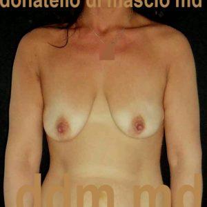 Mastopessi + Protesi sotto muscolare prima