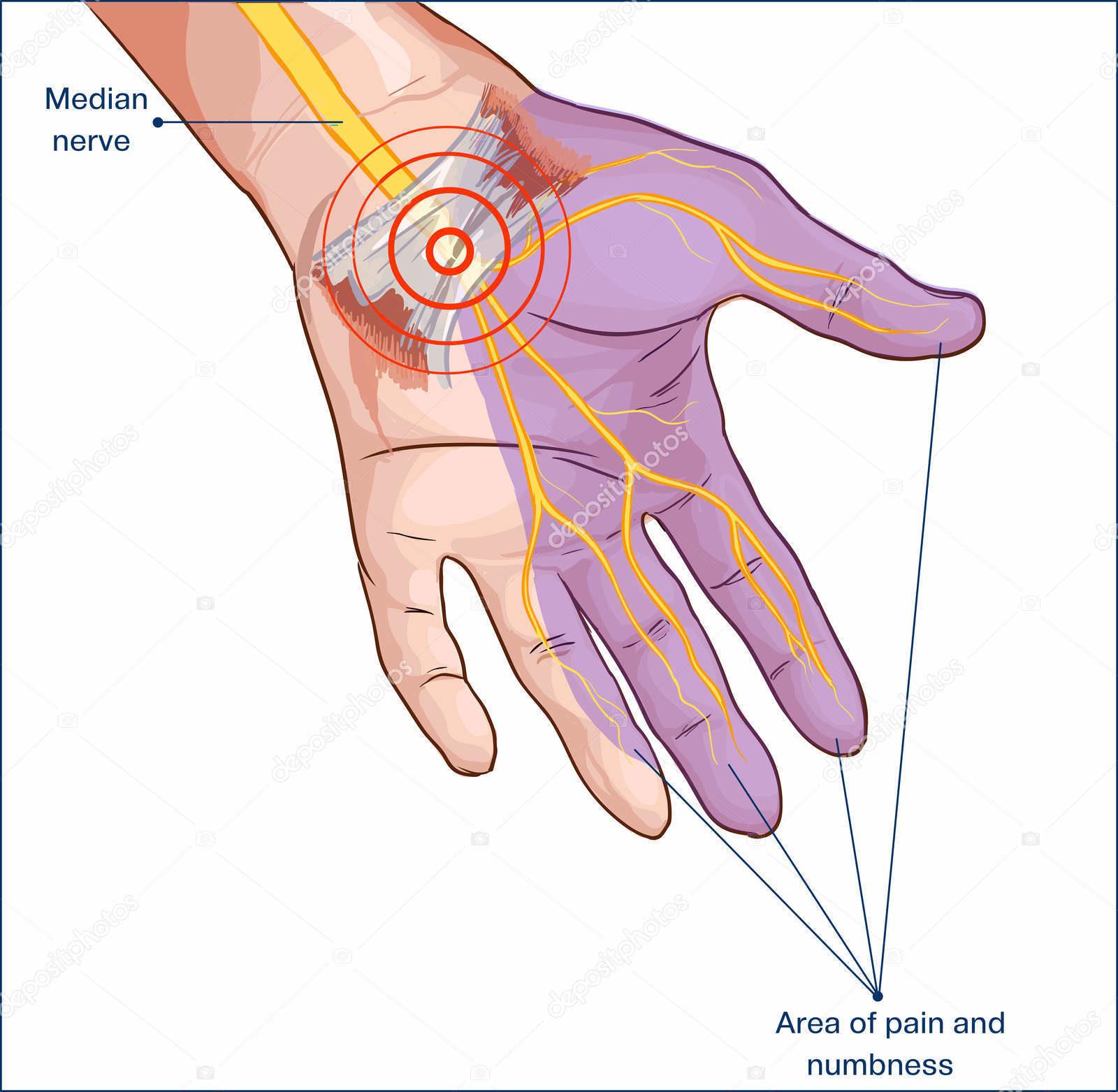 Dott. Di Mascio - Chirurgo Plastico | Chirurgia Ricostruttiva Sindrome del Tunnel Carpale