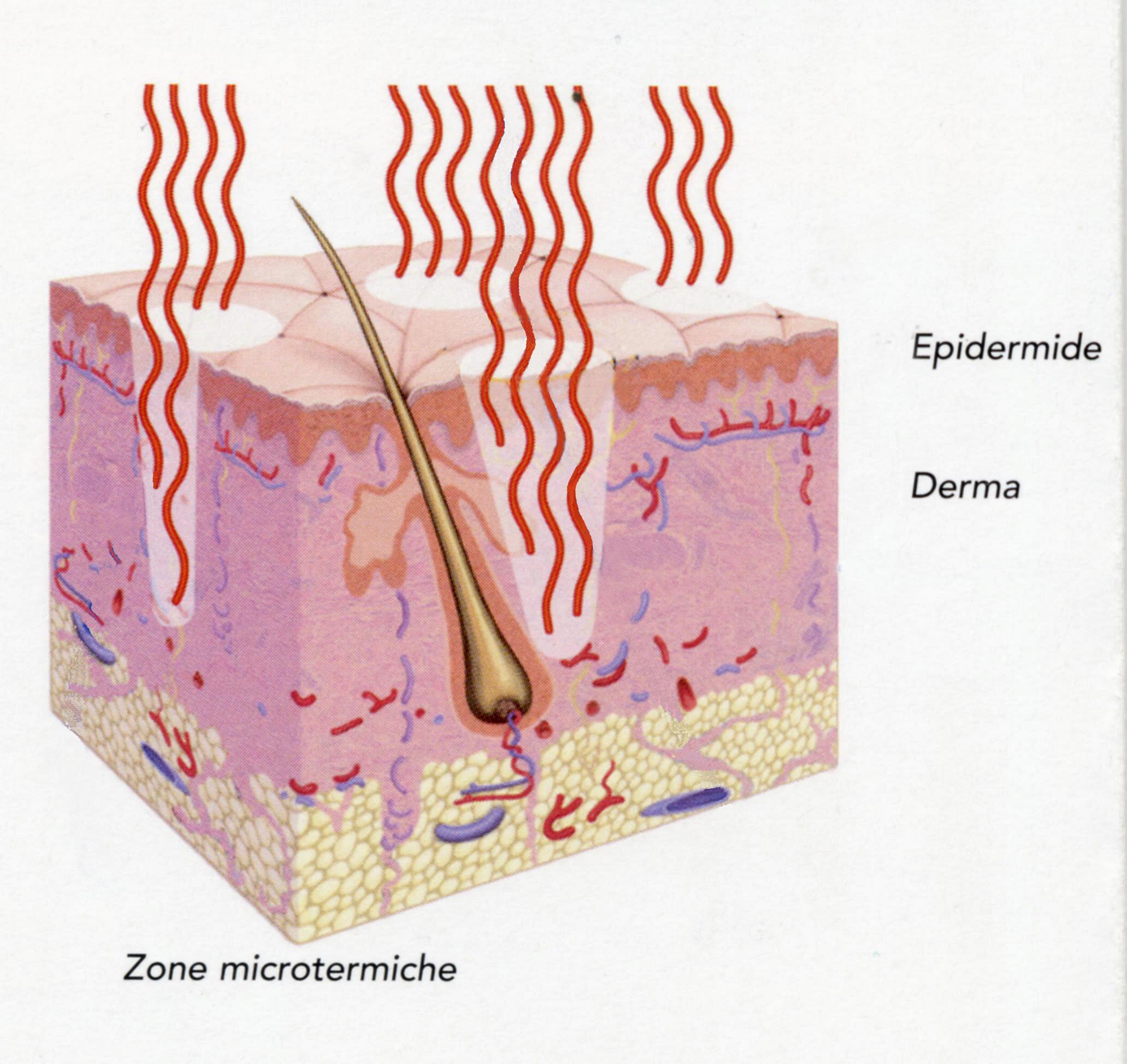 Medicina Estetica Laser Frazionale