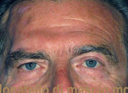 Chirurgia dell'Orecchio | Ptosi prima dell'intervento