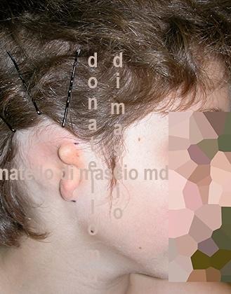 Chirurgia dell'Orecchio | Malformazione Auricolare Prima dell'intervento