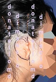 Chirurgia dell'Orecchio - Lesioni Auricolari Congenite | Malformazione Auricolare Prima dell'intervento