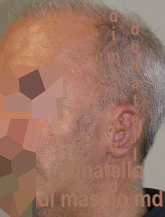 Chirurgia dell'Orecchio - Lesioni Auricolari Congenite | Malformazione Auricolare Dopo l'intervento