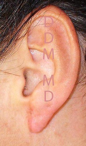 Chirurgia Estetica Orecchio | Lobo Bifido - Dopo l'intervento
