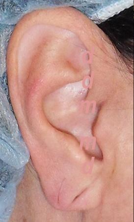 Chirurgia Estetica Orecchio | Lobo Bifido - Prima dell'intervento