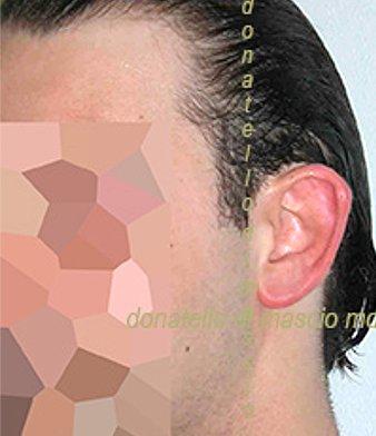 Chirurgia Estetica Orecchio | Orecchie a ventola laterale sinistra - Prima dell'intervento