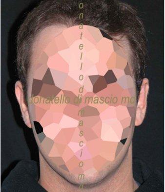 Chirurgia Estetica Orecchio | Orecchie a ventola - Dopo l'intervento