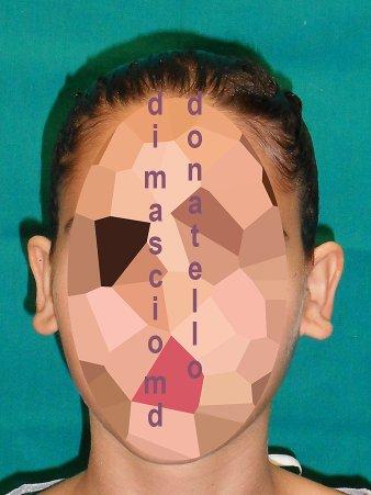 Chirurgia Estetica Orecchio | Orecchie a Ventola - Prima dell'intervento