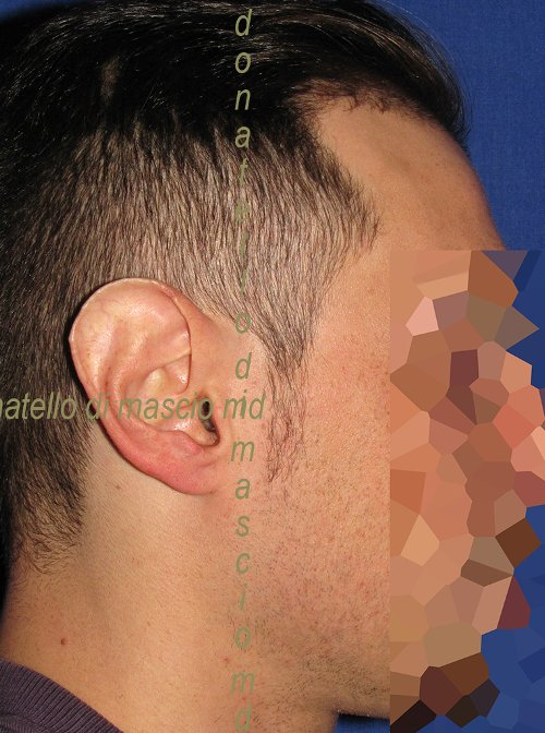 Orecchio Grande (Macrotia) Riduzione - Prima dell'intervento