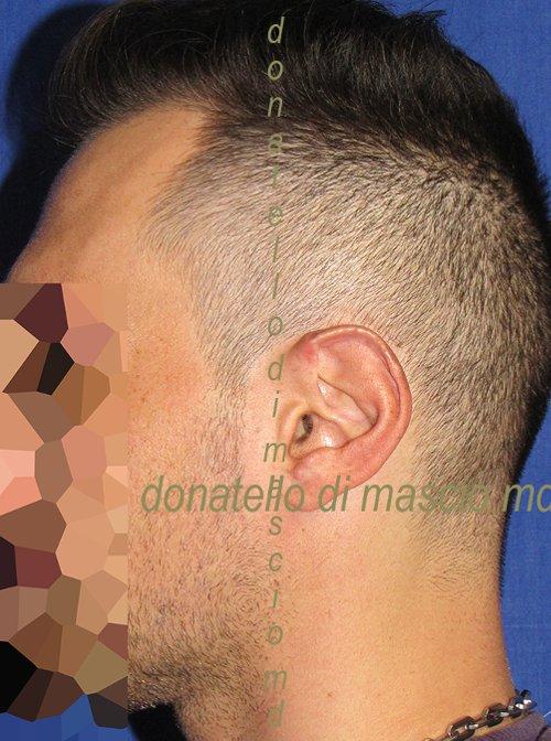 Orecchio Grande (Macrotia) Riduzione -  Dopo l'intervento
