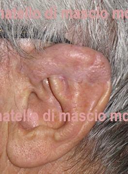 Chirurgia dell'Orecchio | Lesioni Auricolari acquisite - dopo l'intervento