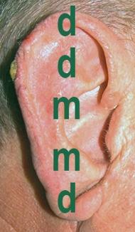 Chirurgia dell'Orecchio | Lesioni Auricolari acquisite - prima dell'intervento