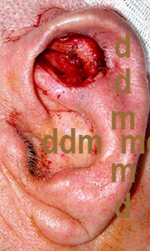 Chirurgia dell'Orecchio | Lesioni Auricolare acquisite - dopo l'intervento