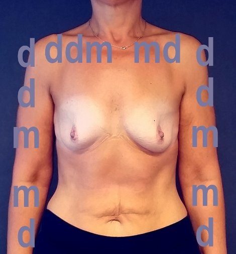 Chirurgia Estetica | Aumento del Seno: Mastoplastica additiva - Prima dell'intervento