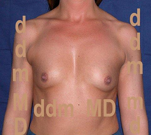 Chirurgia Estetica | Aumento del Seno: Mastoplastica additiva con protesi sotto muscolari - Prima dell'intervento