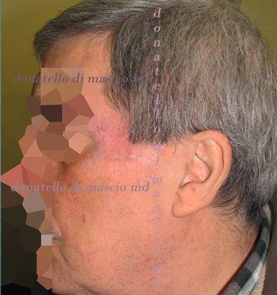 Chirurgia Plastica Ricostruttiva | Oncoplastica - Epitelioma Dopo l'intervento