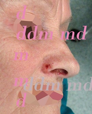 Chirurgia Plastica Ricostruttiva | Oncoplastica - Epitelioma Naso Prima dell'intervento