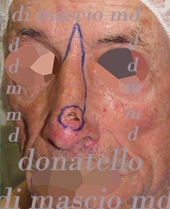 Chirurgia Plastica Ricostruttiva | Oncoplastica - Epitelioma Naso Disegno Prima dell'operazione