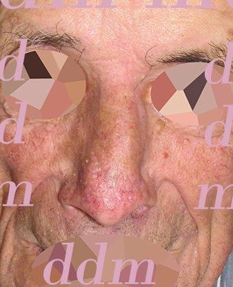 Chirurgia Plastica Ricostruttiva | Oncoplastica - Epitelioma Naso Dopo l'operazione
