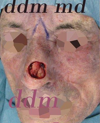 Chirurgia Plastica Ricostruttiva | Oncoplastica - Epitelioma Naso Intra Operazione