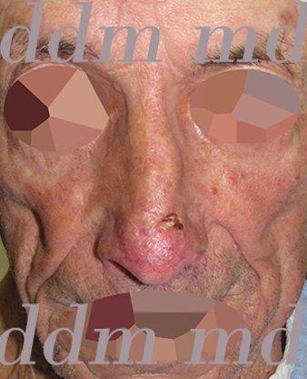 Chirurgia Plastica Ricostruttiva | Oncoplastica - Epitelioma Naso Prima dell'operazione