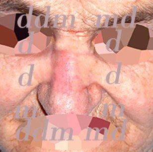 Chirurgia Plastica Ricostruttiva | Oncoplastica - Epitelioma Naso Dopo l'intervento