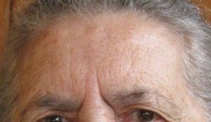 Medicina Estetica - Rughe Glabellari