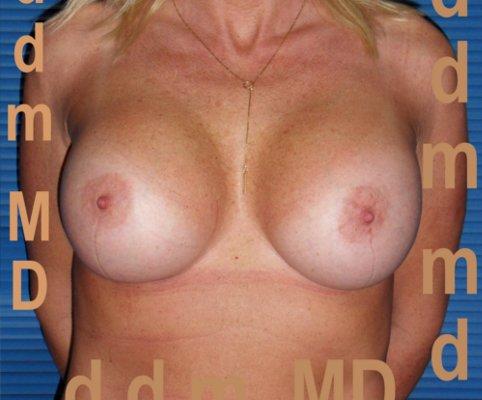 Chirurgia Estetica | Aumento del Seno: Mastoplastica additiva - 2011