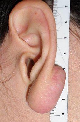 Chirurgia Ricostruttiva dell'Orecchio - Lesioni Auricolari Acquisite - Cheloidi
