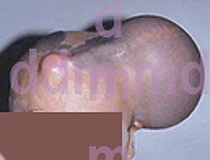 Chirurgia Plastica Ricostruttiva | Ustioni - Espansione Cutanea