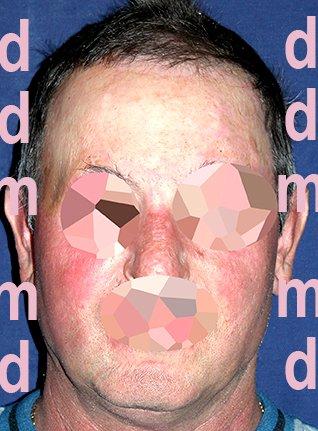 Chirurgia Plastica Ricostruttiva | Ustioni - dopo l'intervento