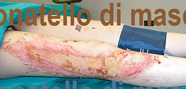 Chirurgia Plastica Ricostruttiva | Ustioni - prima dell'intervento