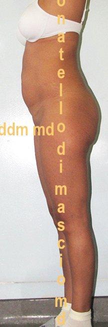 Chirurgia Estetica Addome | Addominoplastica - prima dell'intervento