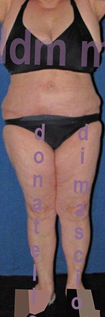 Chirurgia Estetica Addome | Addominoplastica - dopo l'intervento