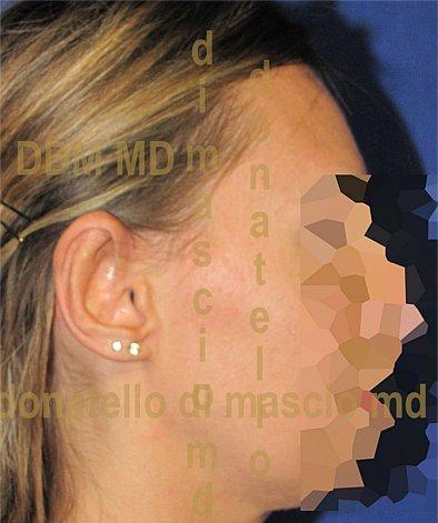 Chirurgia Estetica Orecchio | Orecchie a ventola posteriore - Dopo l'intervento