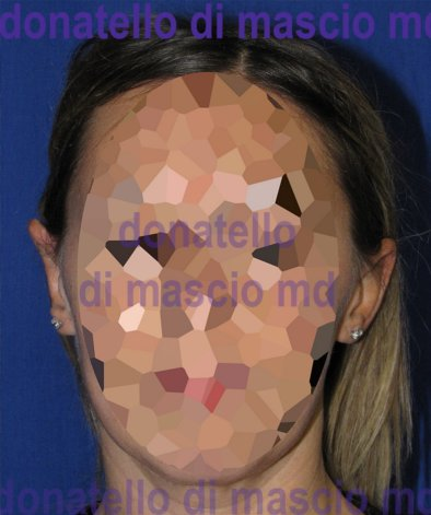 Chirurgia Estetica Orecchio | Orecchie a ventola anteriore - Dopo l'intervento