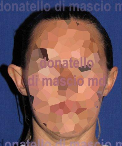 Chirurgia Estetica Orecchio | Orecchie a ventola fronte - Prima dell'intervento